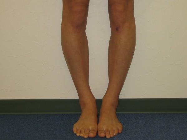 O脚である事が低身長に影響している7つの理由