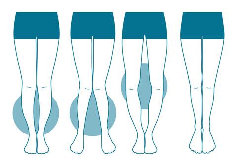 O脚を治すことで身長が劇的にかわる!7つの矯正法