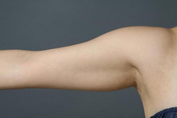 二の腕が細く見える洋服コーデを体型別にご紹介