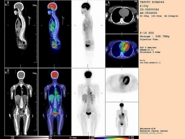 ペット検査ってどんなもの?健康診断の進化を徹底解剖