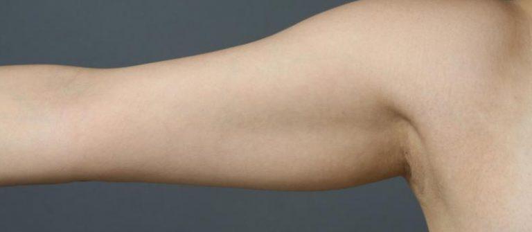 二の腕を痩せるには?効果的な5つの運動